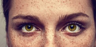'Freckle Challenge' Goes Viral