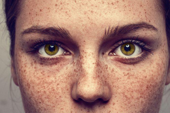 'Freckle Challenge' Goes Viral
